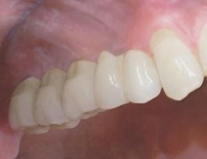 implantgetragene-bruecke