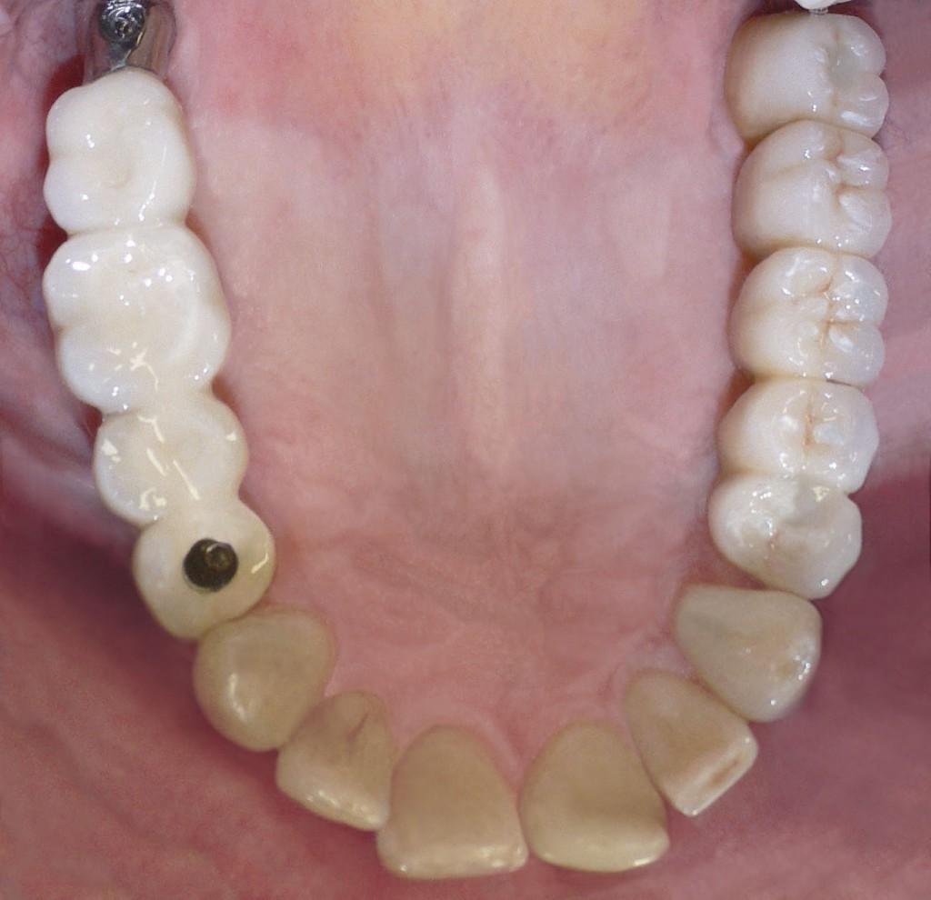 implantgetragene-bruecke-beide-seiten