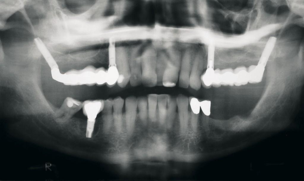 pyramidale-implantate